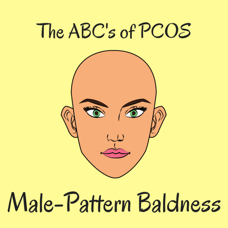 The ABC's of PCOS_ Baldness